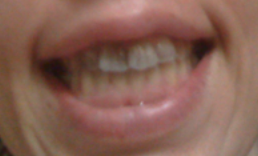 My teeth turned grey due to the antibiotics...